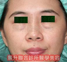 肌肉縮小素注射 治療眼袋、黑眼圈前
