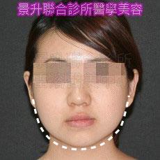 肌肉縮小素消除國字臉後