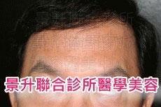 肌肉縮小素治療抬頭紋及魚尾紋後
