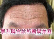 肌肉縮小素治療抬頭紋及魚尾紋前