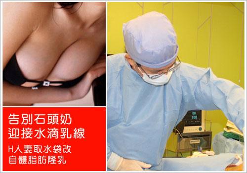 東區辣媽告別石頭奶-取水袋改自體脂肪隆乳手術記