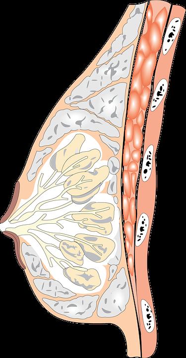 分層沙拉式打法, 有助於降低自體脂肪隆乳術後胸部產生硬塊之可能
