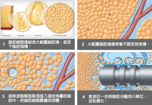 超音波溶脂的脂肪可以做自體脂肪隆乳,這是醫學文獻證實的事