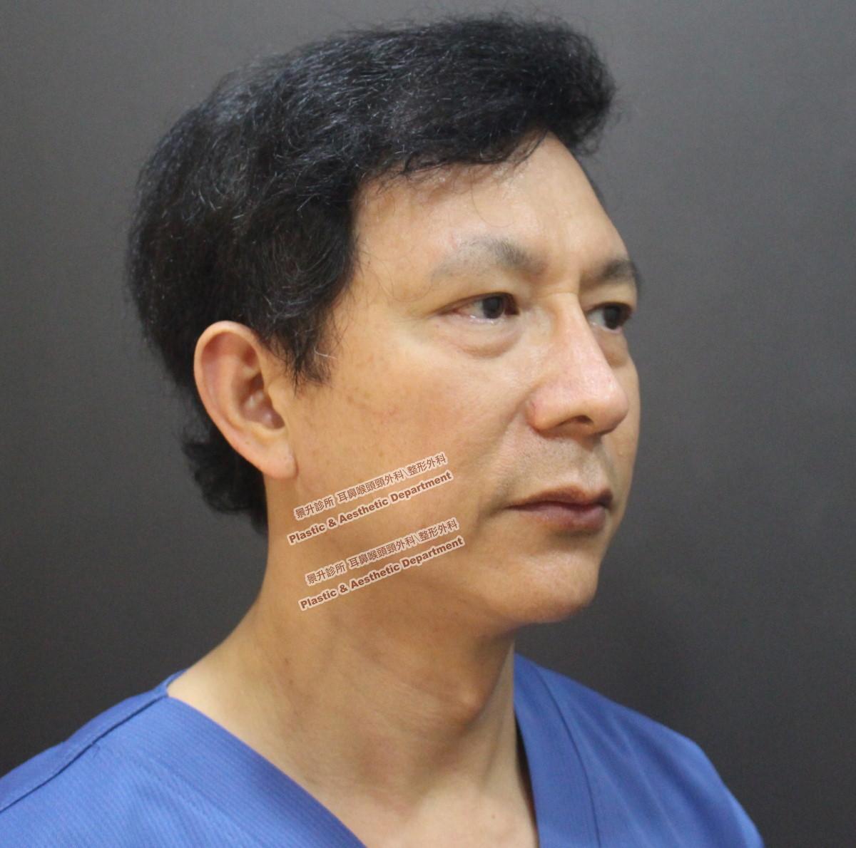 眼袋不動手術治療前