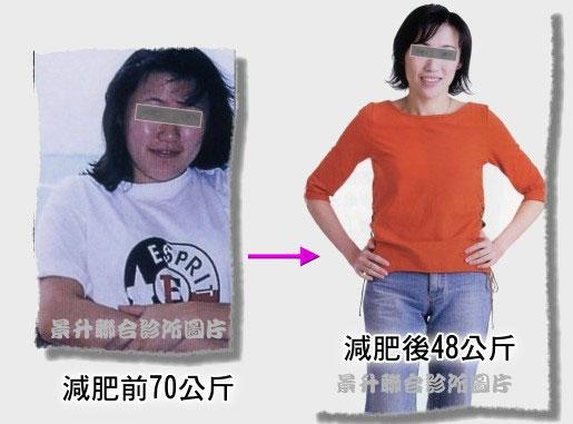 減肥治療前體重70公斤減肥治療後體重48公斤
