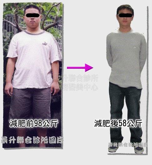 減肥治療前體重98公斤減肥治療後體重58公斤