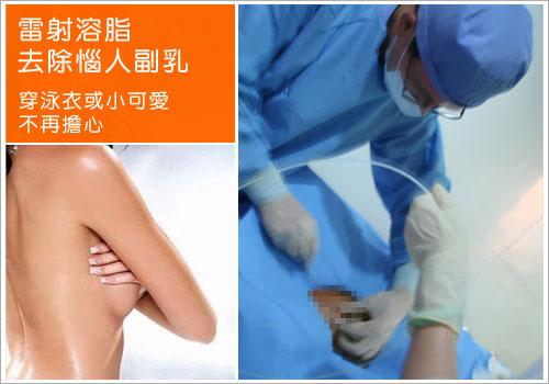副乳,副乳消除,副乳手術,副乳內衣,副乳運動,副乳手術費用,消除副乳,消除副乳運動,瘦手臂副乳讓你不再擔心穿泳衣或小可愛