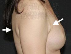 溶脂消除副乳前