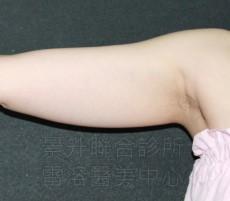 溶脂瘦手臂前