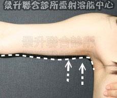溶脂瘦手臂後