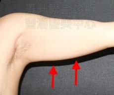 超音波溶脂瘦手臂治療前