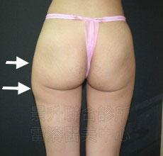 美臀、豐臀、翹臀前