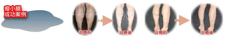 瘦小腿治療前後圖