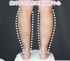 超音波溶脂瘦小腿治療後