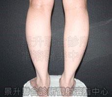 溶脂快速瘦小腿前