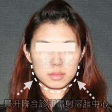 雷射溶脂瘦臉治療後