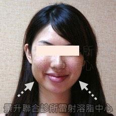 雷射溶脂瘦臉治療前