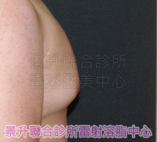 超音波溶脂男性女乳症治療前