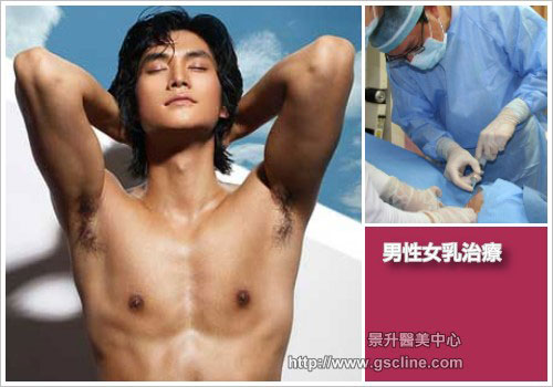 引進第三代超音波溶脂和雷射溶脂男性女乳症治療技術