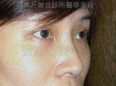 玻尿酸隆鼻後