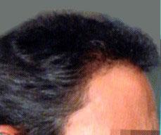 微創植髮後