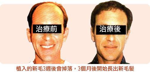 ▲微創植髮效果前後比較圖