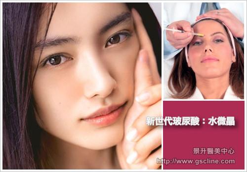 肌肉縮小素注射消除臉部皺紋