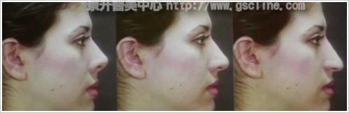 水微晶-完美臉型側面