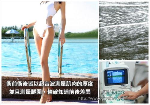 瘦小腿治療前後皆以超音波測量小腿肌肉厚度並且測量腿圍