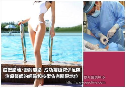 美腿-成功的美腿有賴醫師的經驗和技術