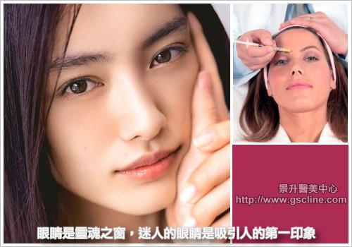 雙眼皮整形改善眼形缺點