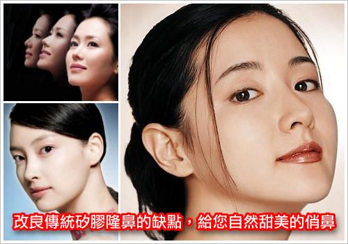 i隆鼻,韓式隆鼻改良矽膠隆鼻的缺點