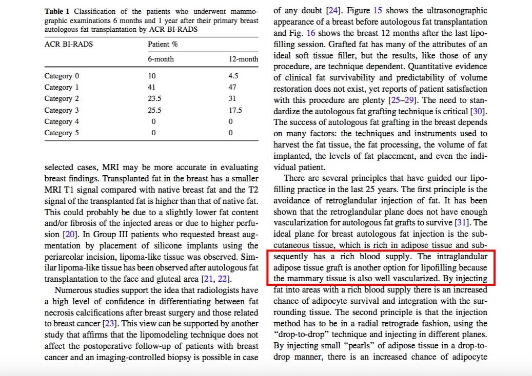 法國醫師 Illouz 在一篇『自體脂肪隆乳25年的經驗』論文中,認為脂肪打到乳腺反而可以提高脂肪的存活率