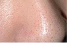 淨膚雷射毛孔粗大、皮膚細紋治療前