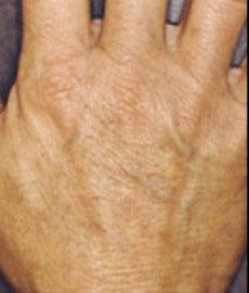 淨膚雷射色素斑、老斑治療後