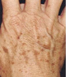 淨膚雷射色素斑、老斑治療前
