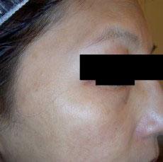 淨膚雷射黑斑、雀斑、發炎後色素沉澱治療後