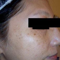 淨膚雷射黑斑、雀斑、發炎後色素沉澱治療前