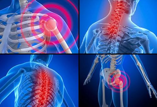 低強度雷射是一種輸出能量小於一瓦的雷射,又稱冷雷射。照射組織的時候不會疼痛也不會受傷,但是照射後組織細胞生理機能增強,修復能力改善