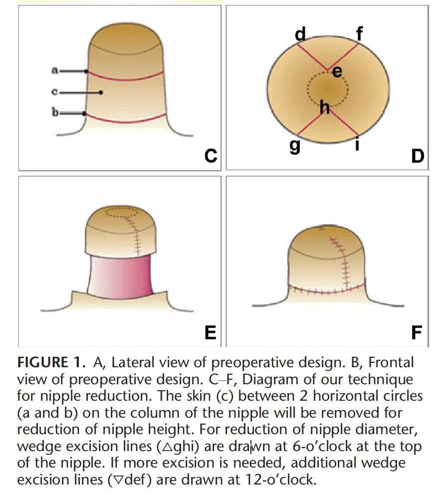 太大的乳頭必須縮小,可在乳頭的6點鐘方向做一楔型切除多餘的乳頭皮膚,如果這樣還不夠,可以在12點鐘方向再做一個楔型切除,縫合後乳頭就會變小
