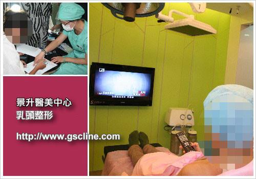 乳頭凹陷,乳頭巨大,乳頭下垂,乳頭整形門診流程