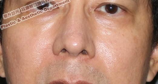 鼻樑太寬、鼻頭太大治療後