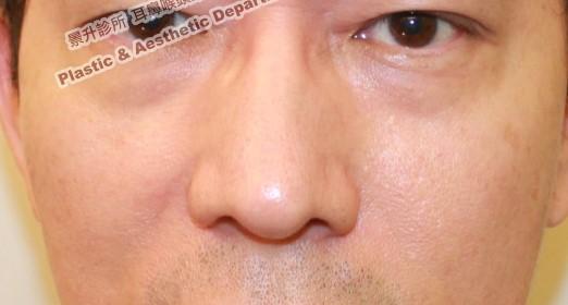 鼻樑太寬、鼻頭太大治療前