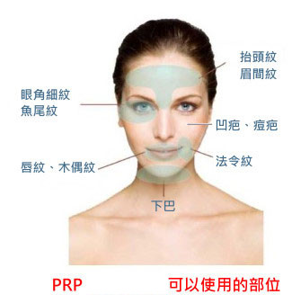 prp 改善皮膚鬆弛老化,毛孔粗大,和靜態細紋