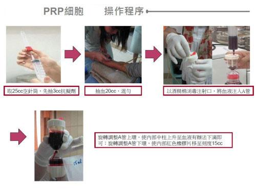 prp,prp 醫美,prp 生長因子,醫美 prp,血小板 prp,prp 離心機,生長因子注射,血小板血漿治療操作過程一