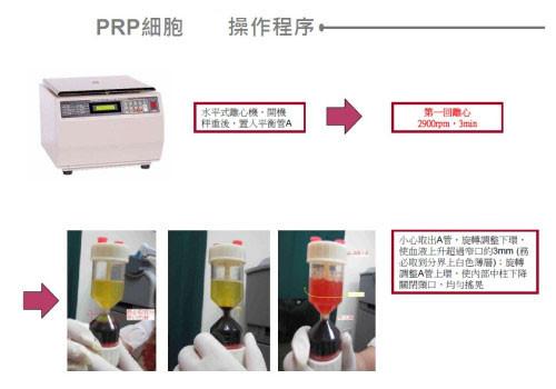 prp,prp 醫美,prp 生長因子,醫美 prp,血小板 prp,prp 離心機,生長因子注射,血小板血漿治療操作過程二