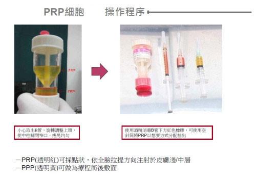 prp,prp 醫美,prp 生長因子,醫美 prp,血小板 prp,prp 離心機,生長因子注射,血小板血漿治療操作過程三