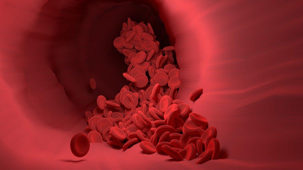 高血脂形成的斑塊如果破裂會造成血管壁些微破裂, 血小板會開始修補, 當修補次數多了會使血管壁變窄, 進而造成血管堵塞