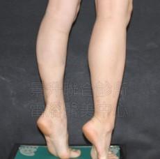 「名模纖腿術」瘦小腿治療後