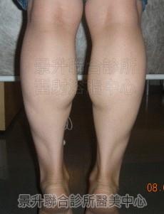 瘦小腿治療前